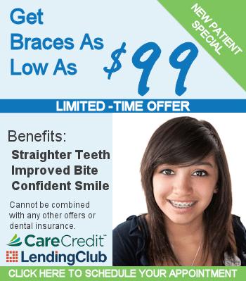 braces special